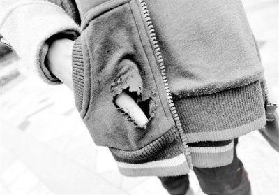 玩具手枪在幼童口袋爆炸图片1