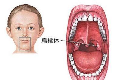 [扁桃体炎是什么症状]扁桃体炎是什么
