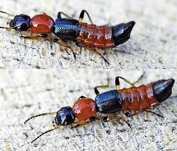 隐翅虫皮炎是怎么回事图片1